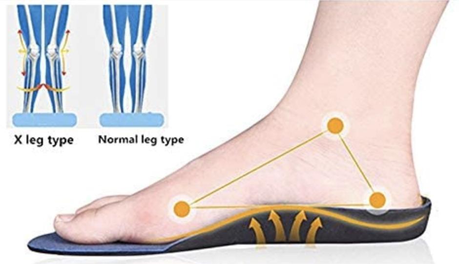 Solelution Plattfuß Schuheinlagen